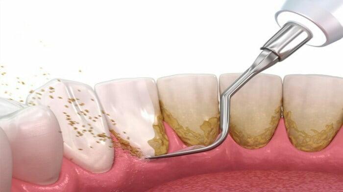 ilustrasi scaling gigi